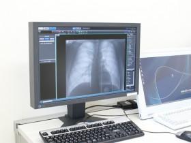 デジタルレントゲンシステムの写真